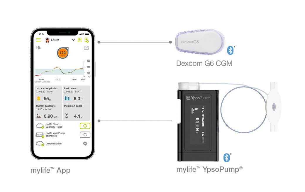 The Dexcom G6 integration into the mylife system makes diabetes therapy management much easier.